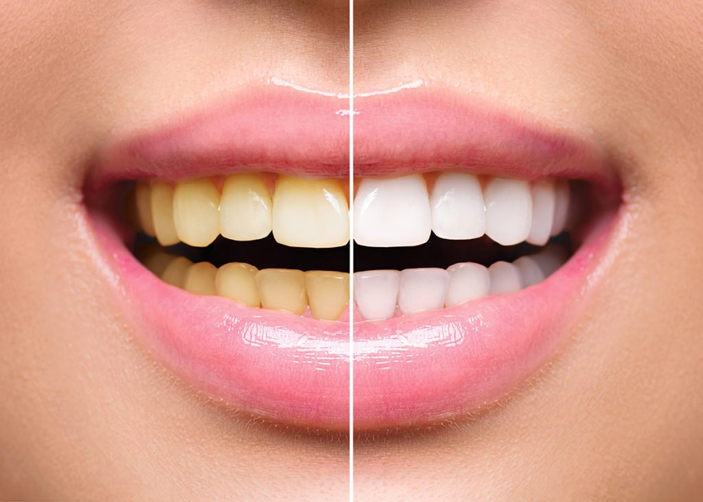 Teeth Whitening Mandurah