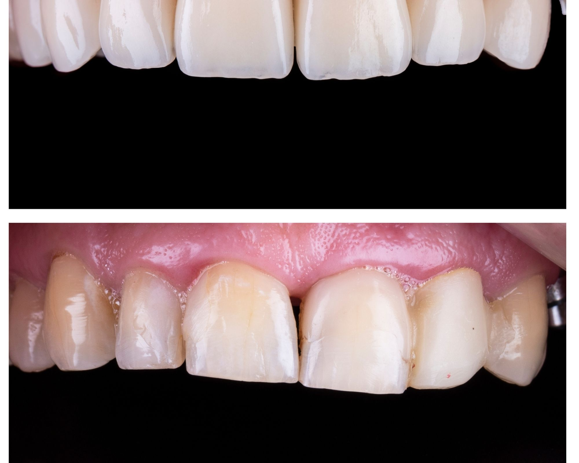 5 Great Tips to Look After Your Porcelain Veneers to Keep it Clean